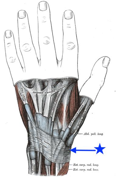 รูปที่ 2 ภาพกายวิภาคของเส้นเอ็นข้อมือที่มักอักเสบจากภาวะพังพืดกดทับ