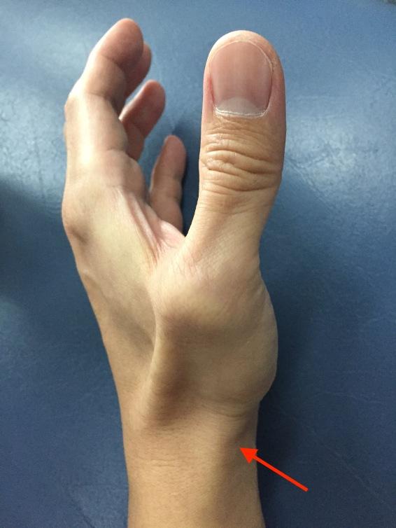 รูปที่ 1 ลูกศรสีแดงแสดงบริเวณที่มีอาการปวดจะพบปุ่มกระดูกอยู่ใกล้ๆ