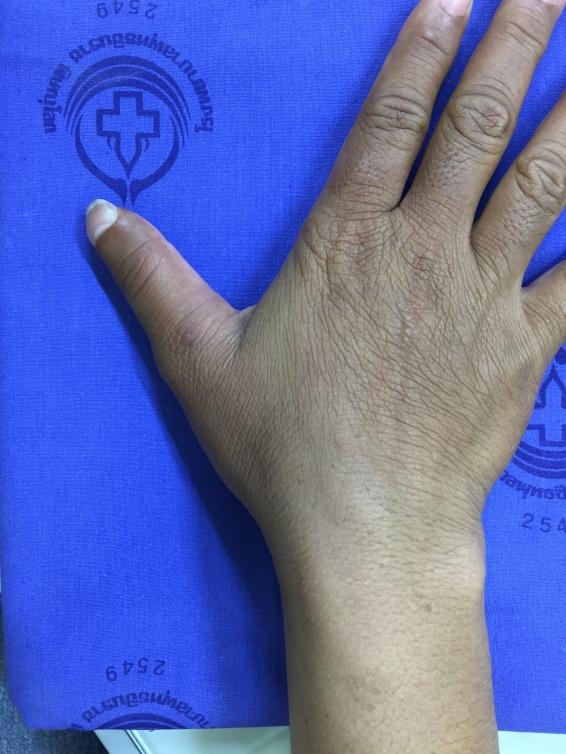รูปร่างน้ำหัวแม่มือยังใกล้เคียงปกติ สามารถรักษาความยาวปลายนิ้วได้