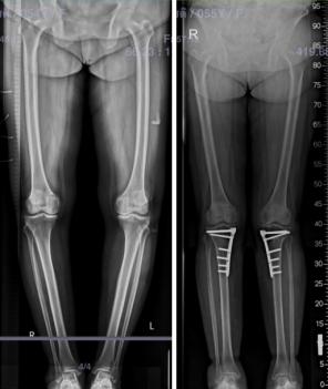 ตัวอย่างนำเสนอการผ่าตัดเปลี่ยนแนวกระดูก.0051